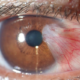 Is Having a Pterygium Dangerous